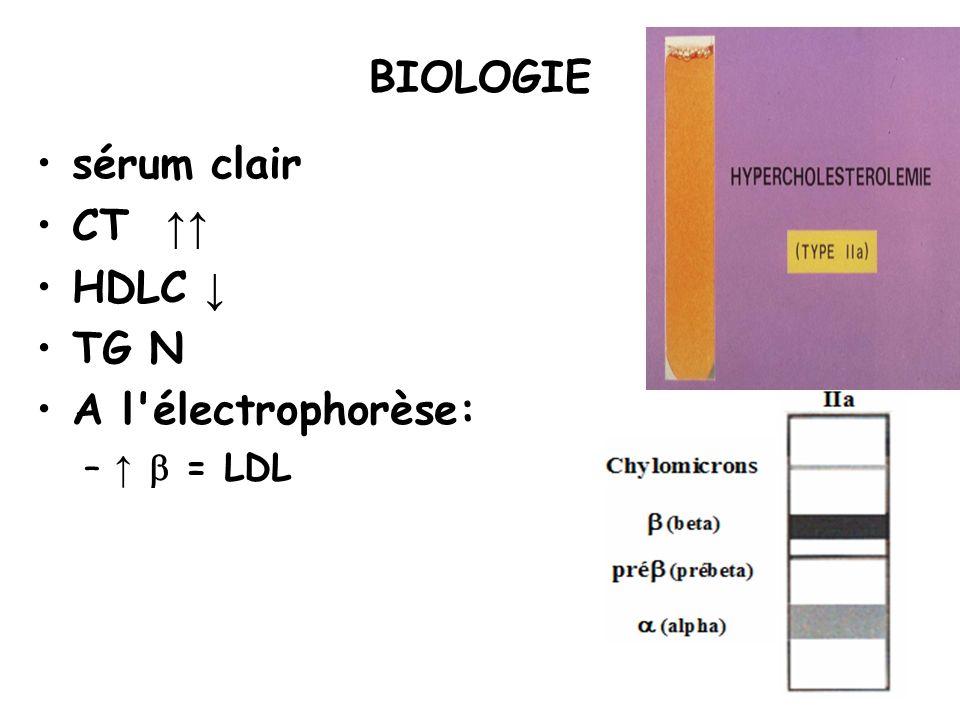 BIOLOGIE sérum clair CT ↑↑ HDLC ↓ TG N A l électrophorèse: ↑ b = LDL