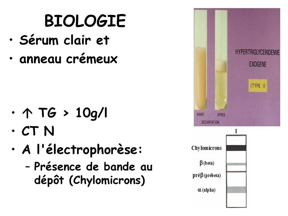 BIOLOGIE Sérum clair et anneau crémeux  TG > 10g/l CT N
