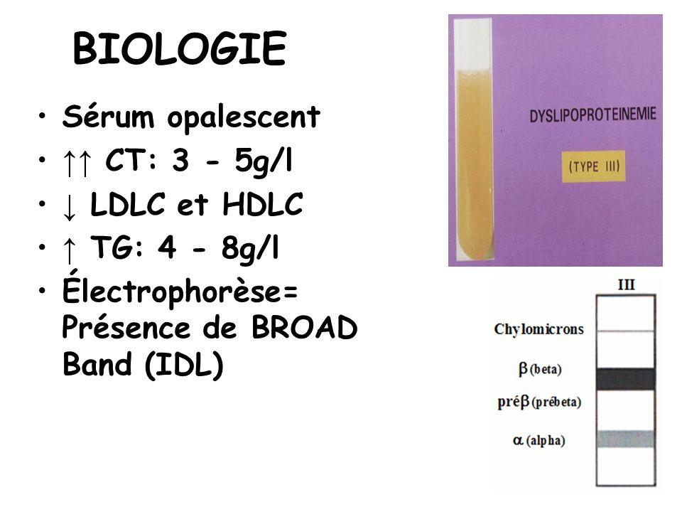 BIOLOGIE Sérum opalescent ↑↑ CT: 3 - 5g/l ↓ LDLC et HDLC