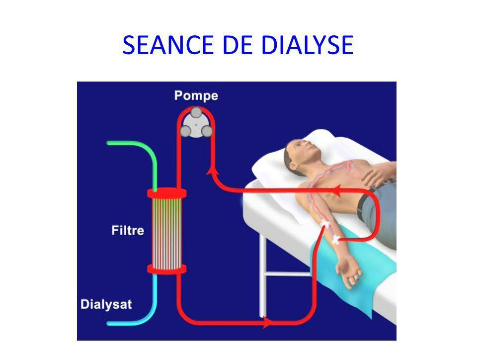 SEANCE DE DIALYSE