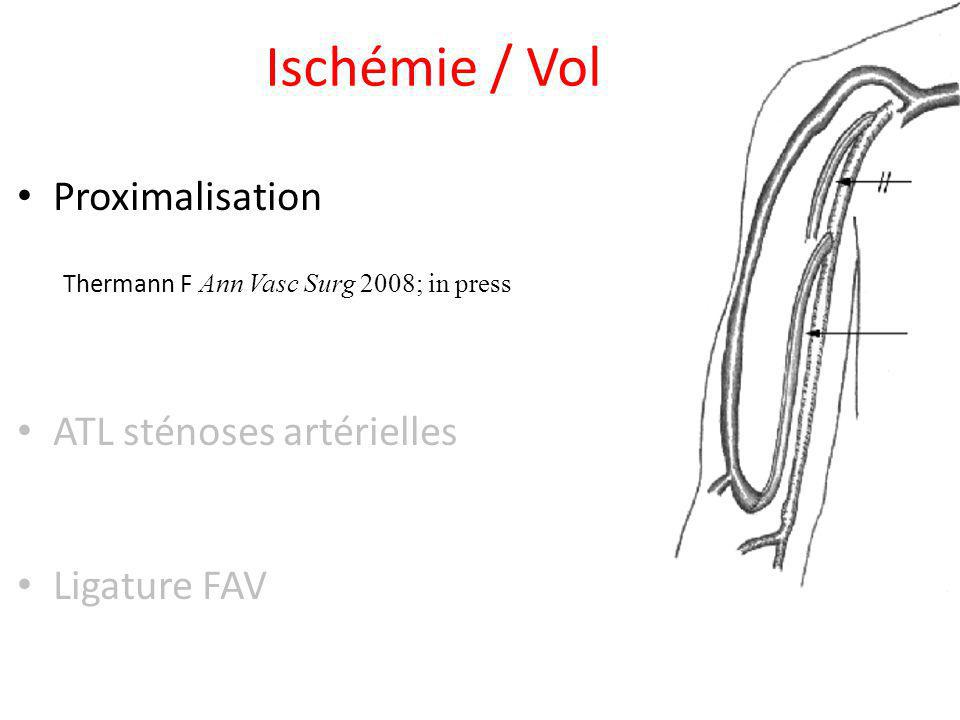 Ischémie / Vol Proximalisation Thermann F Ann Vasc Surg 2008; in press
