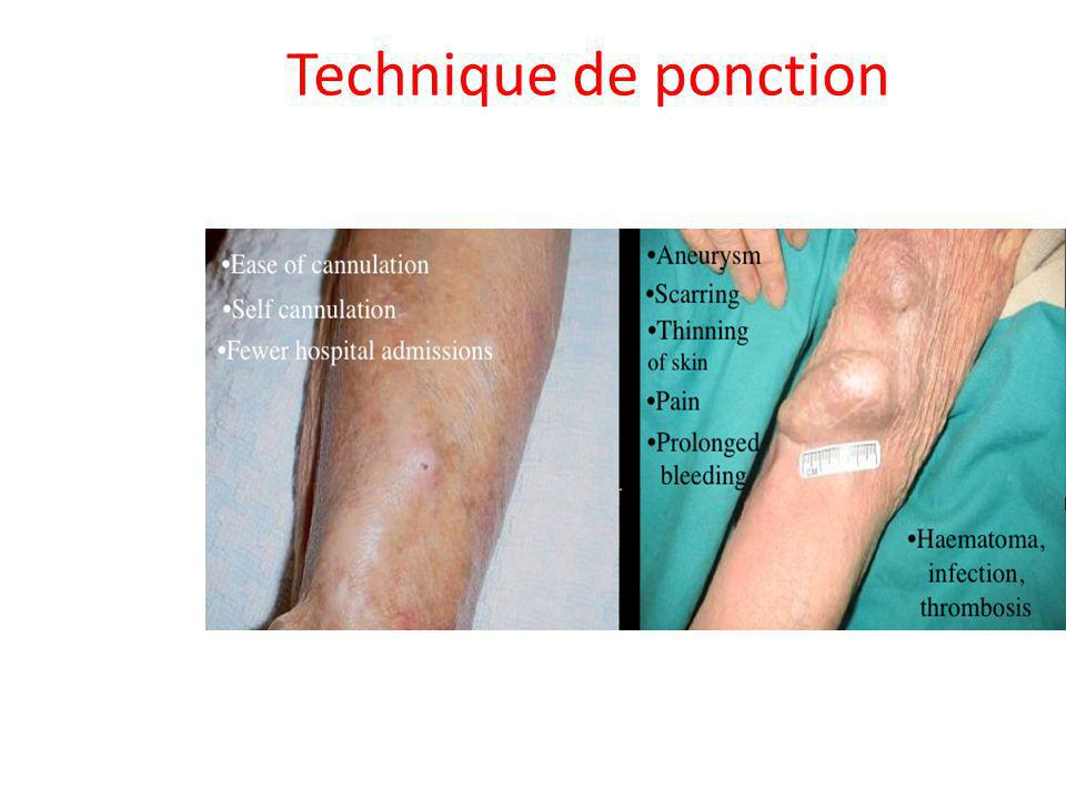 Technique de ponction