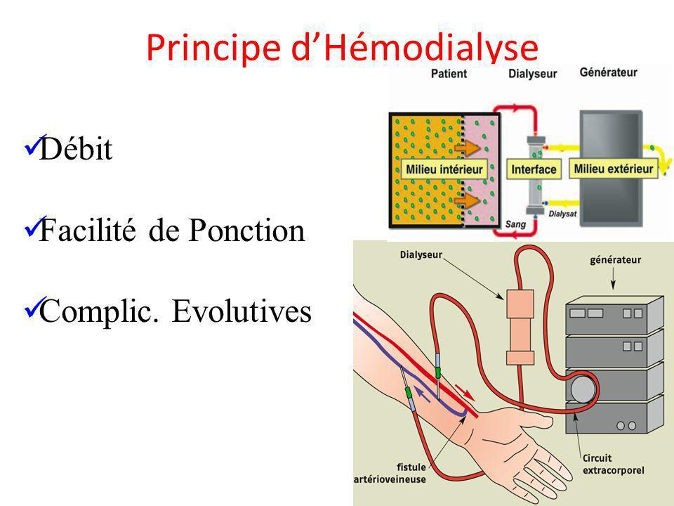 Principe d'Hémodialyse
