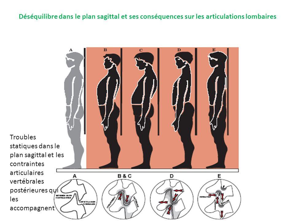 Déséquilibre dans le plan sagittal et ses conséquences sur les articulations lombaires