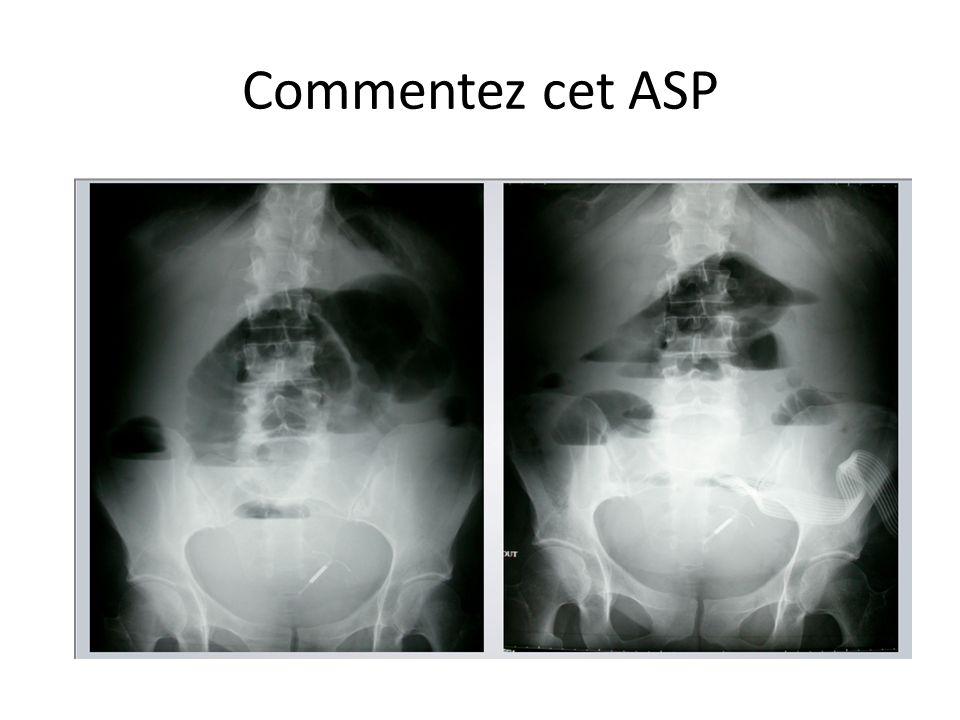 Commentez cet ASP