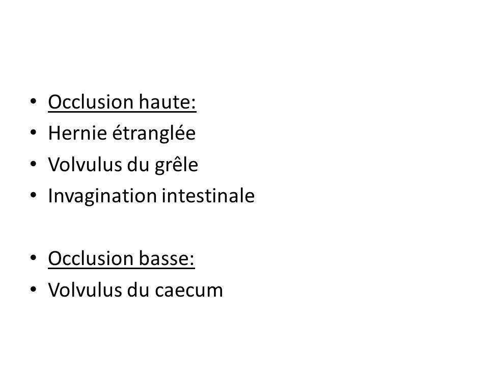 Occlusion haute: Hernie étranglée. Volvulus du grêle. Invagination intestinale. Occlusion basse: