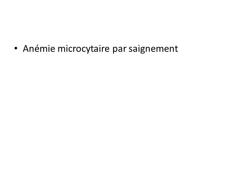 Anémie microcytaire par saignement