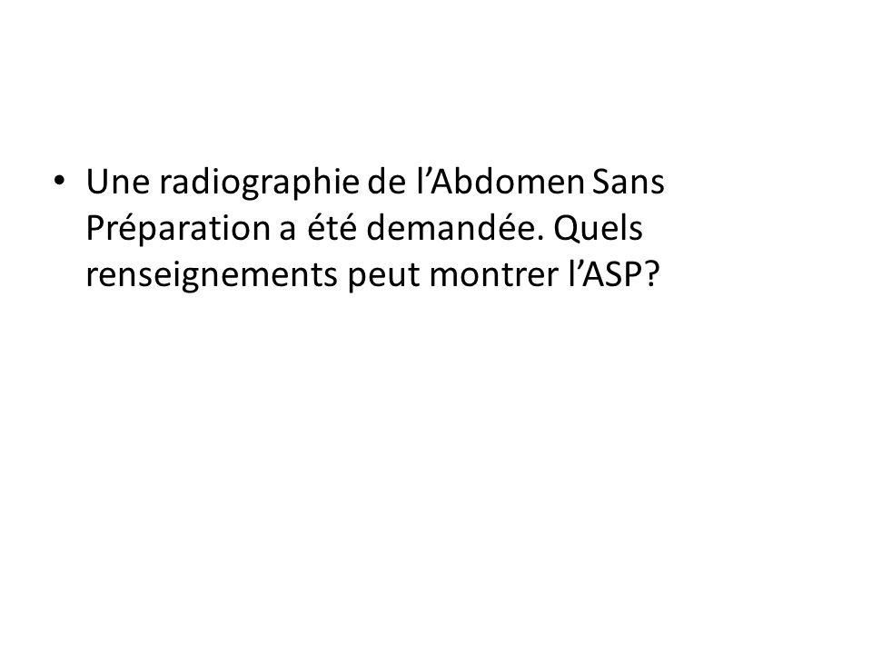 Une radiographie de l'Abdomen Sans Préparation a été demandée