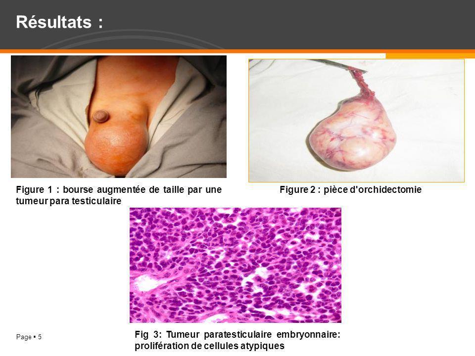 Résultats : Figure 1 : bourse augmentée de taille par une tumeur para testiculaire. Figure 2 : pièce d orchidectomie.
