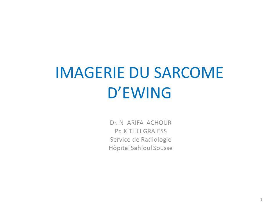 IMAGERIE DU SARCOME D'EWING