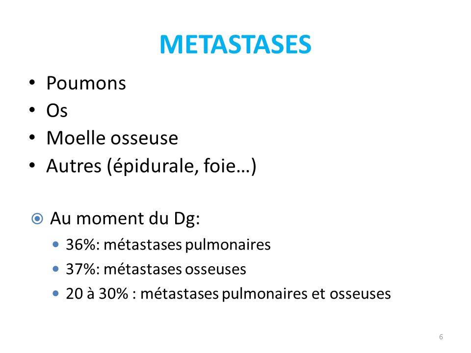 METASTASES Poumons Os Moelle osseuse Autres (épidurale, foie…)