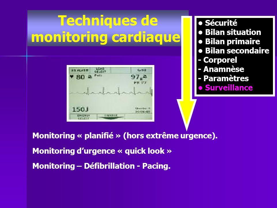 Techniques de monitoring cardiaque.