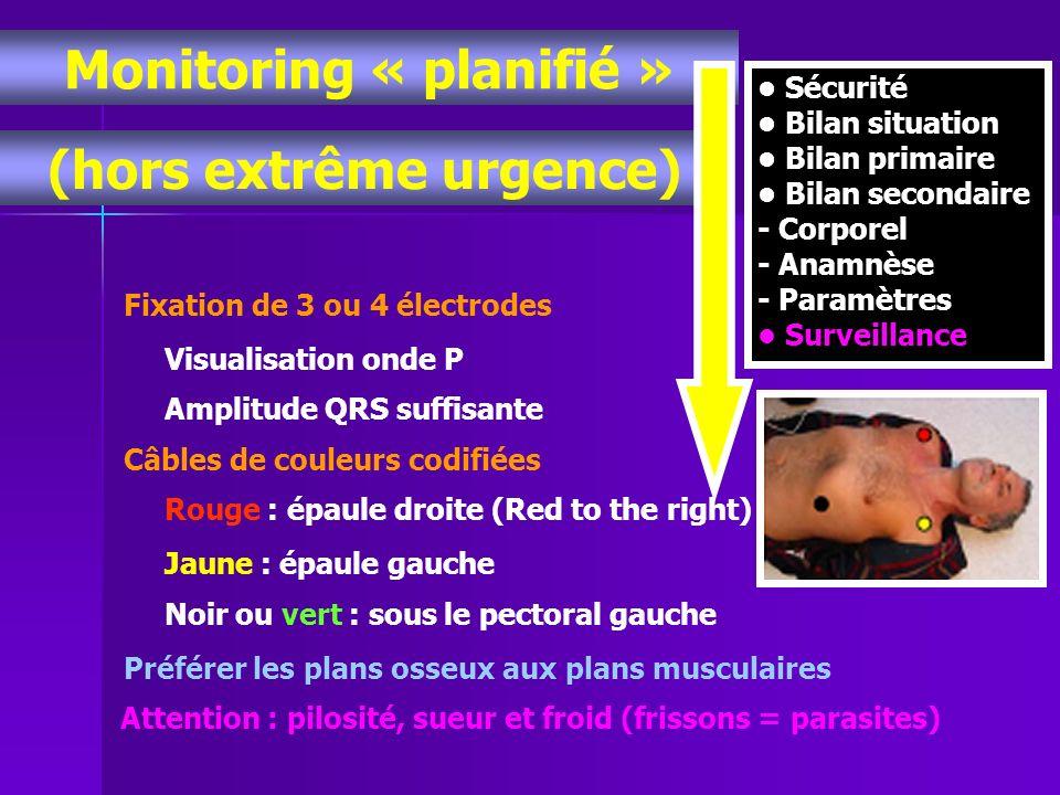 Monitoring « planifié » (hors extrême urgence)