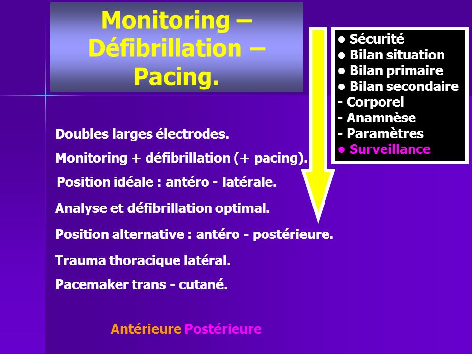 Monitoring – Défibrillation –
