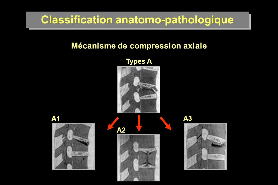 Classification anatomo-pathologique