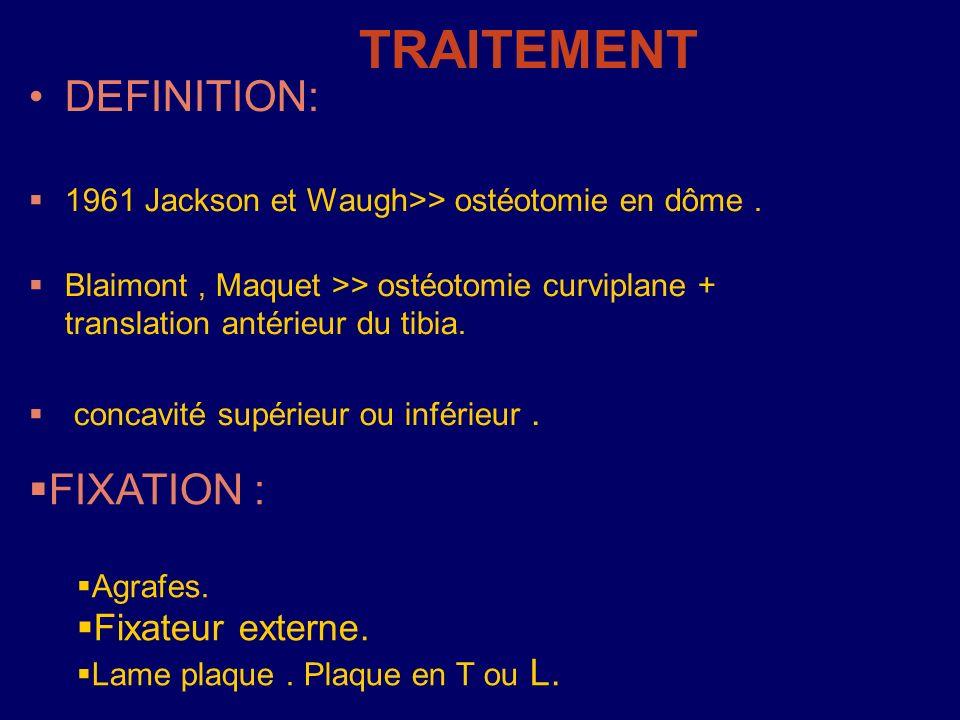 TRAITEMENT DEFINITION: FIXATION : Fixateur externe.
