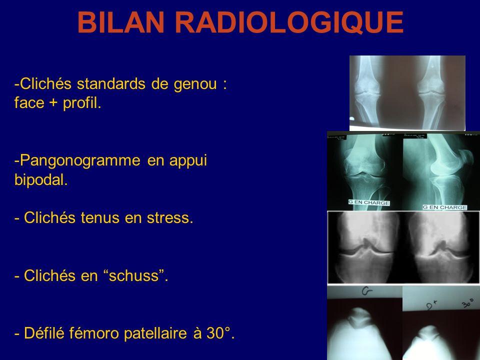 BILAN RADIOLOGIQUE Clichés standards de genou : face + profil.