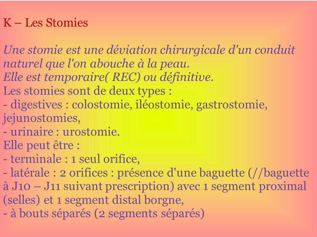 K – Les Stomies Une stomie est une déviation chirurgicale d un conduit naturel que l on abouche à la peau.