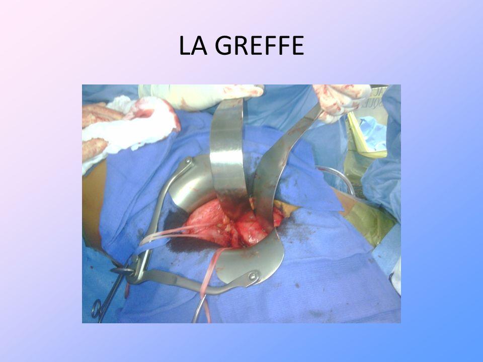 LA GREFFE Incision cutanée de la fosse iliaque droite,(le côté drt est préféré car la veine iliaque y est plus longue).
