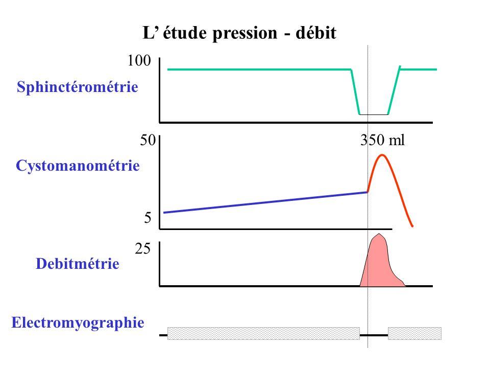 L' étude pression - débit