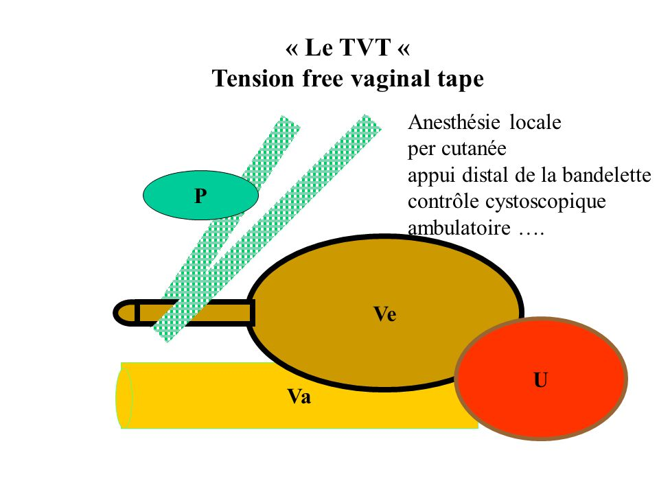 Tension free vaginal tape