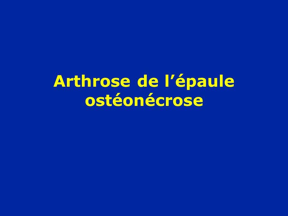 Arthrose de l'épaule ostéonécrose