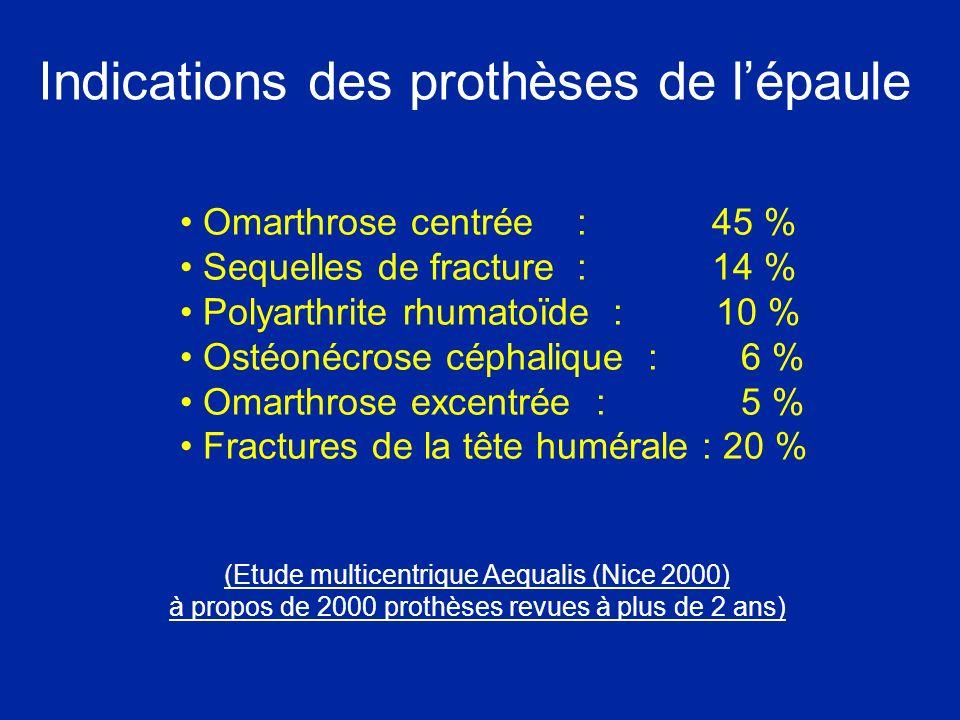 Indications des prothèses de l'épaule