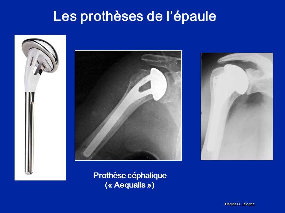 Les prothèses de l'épaule Prothèse céphalique (« Aequalis »)