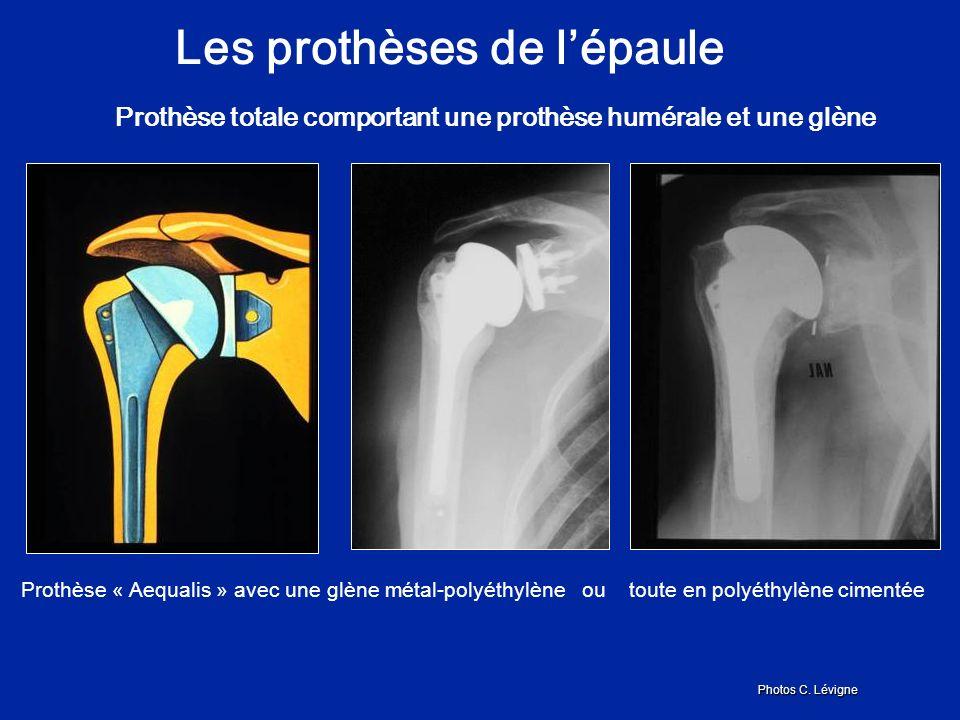 Les prothèses de l'épaule