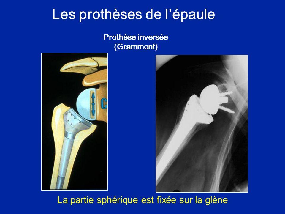 Les prothèses de l'épaule Prothèse inversée (Grammont)