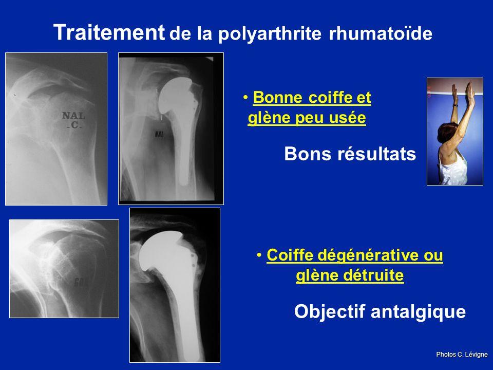 Traitement de la polyarthrite rhumatoïde Coiffe dégénérative ou