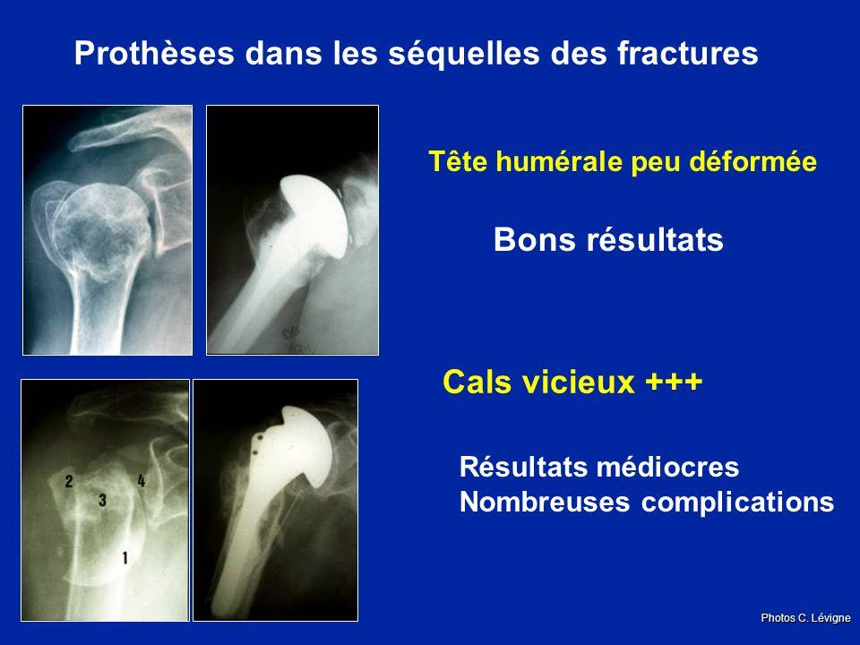 Prothèses dans les séquelles des fractures Tête humérale peu déformée