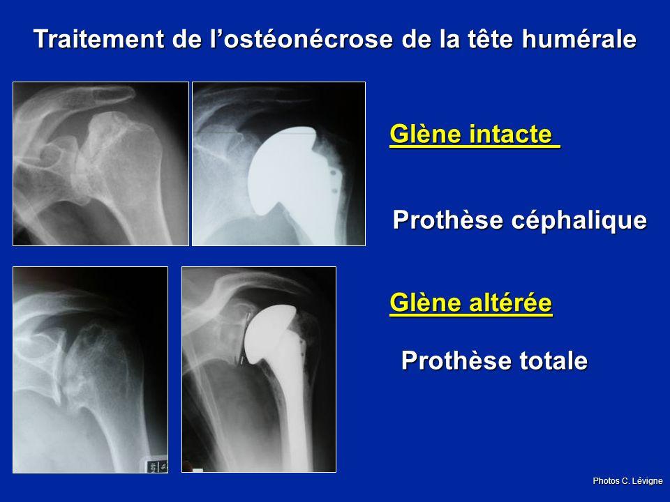 Traitement de l'ostéonécrose de la tête humérale