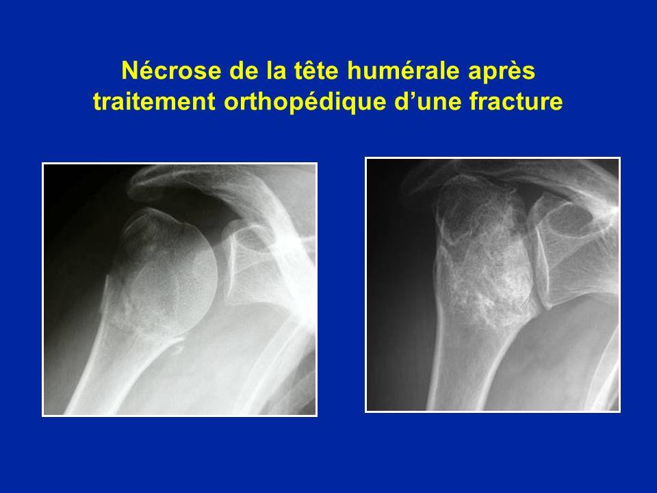 Nécrose de la tête humérale après traitement orthopédique d'une fracture