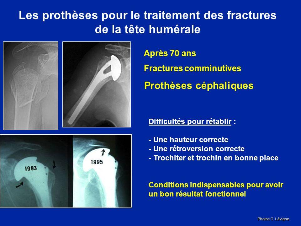 Les prothèses pour le traitement des fractures de la tête humérale