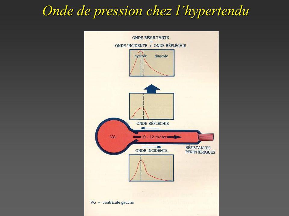 Onde de pression chez l'hypertendu