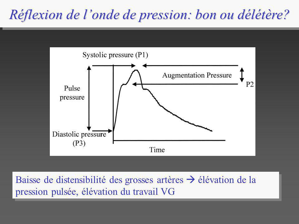 Réflexion de l'onde de pression: bon ou délétère