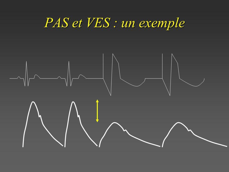 PAS et VES : un exemple