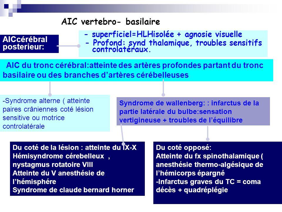 AIC vertebro- basilaire