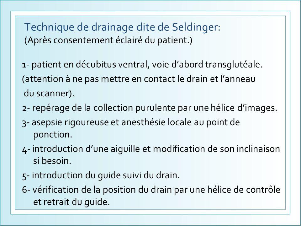 Technique de drainage dite de Seldinger: (Après consentement éclairé du patient.)