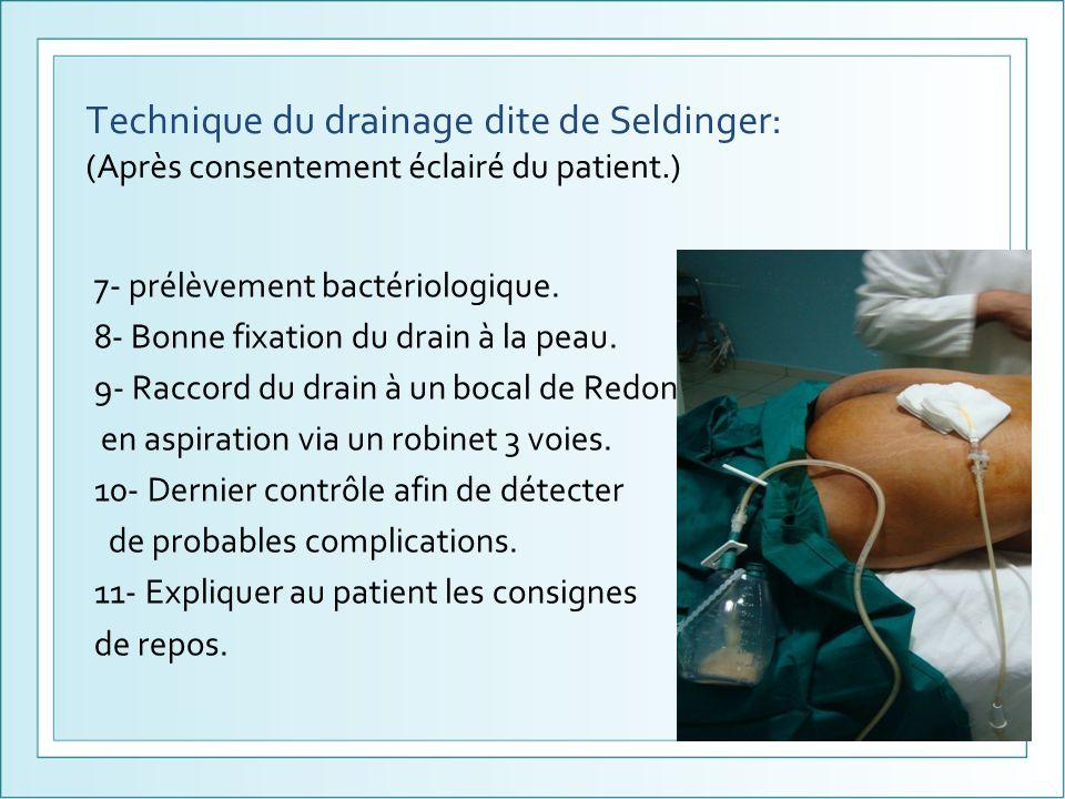 Technique du drainage dite de Seldinger: (Après consentement éclairé du patient.)