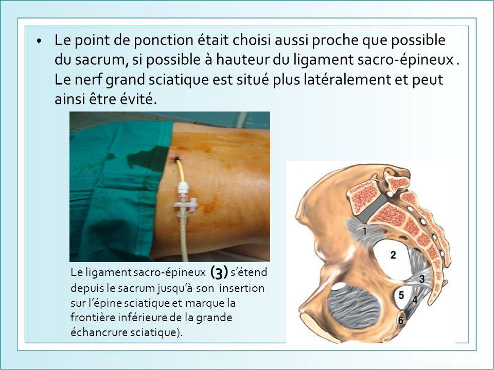 Le point de ponction était choisi aussi proche que possible du sacrum, si possible à hauteur du ligament sacro-épineux . Le nerf grand sciatique est situé plus latéralement et peut ainsi être évité.
