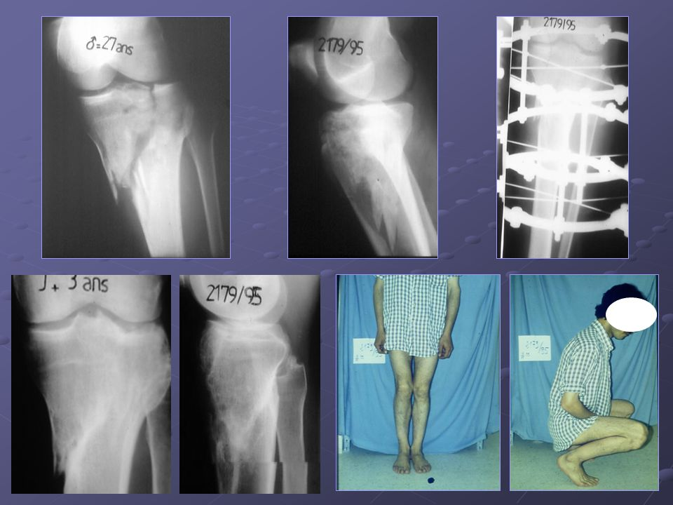 Une fracture spinotubérositaire interne traitée par un FE type ILIZAROV.
