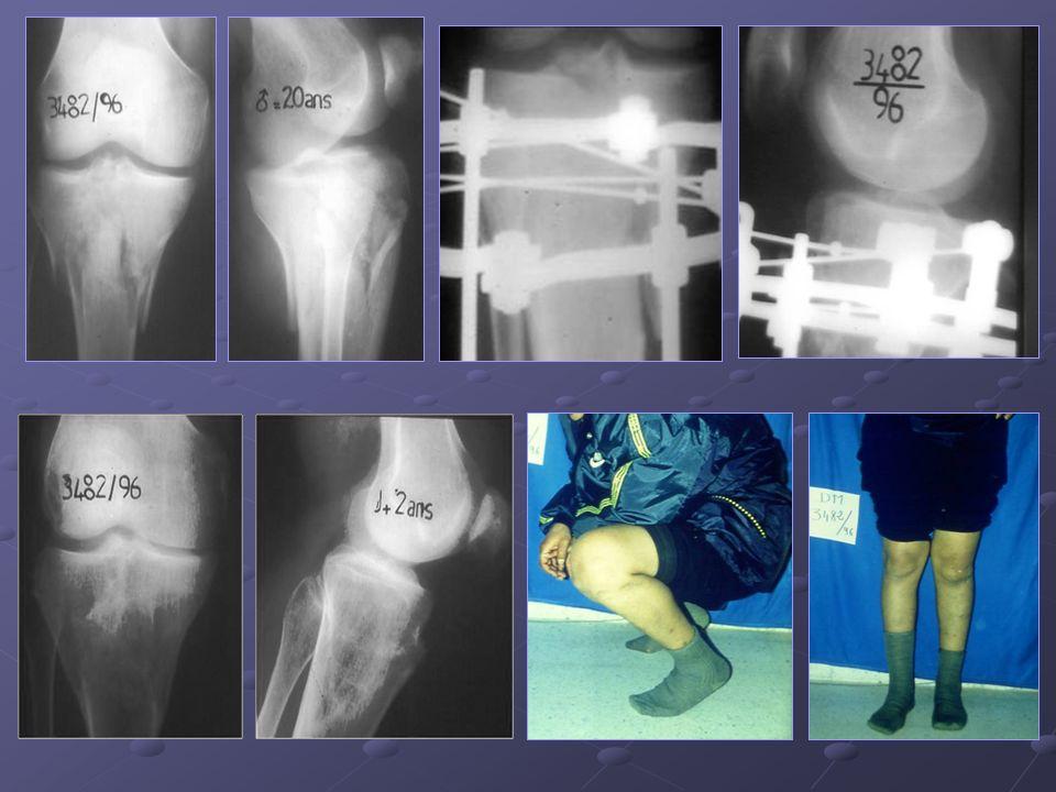 Patient de 25 ans présentant un fx bi tu bérositaire des plateaux tibiaux comminutive, il a été réalisé une ostésynthèse par un FE type Ilizarov avec de bons résultats anatomique et fonstionnel.