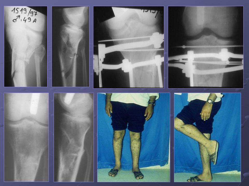 H de 49 ans présentant une fracture comminutive bitubérositaire des plateaux tibiaux du genou G