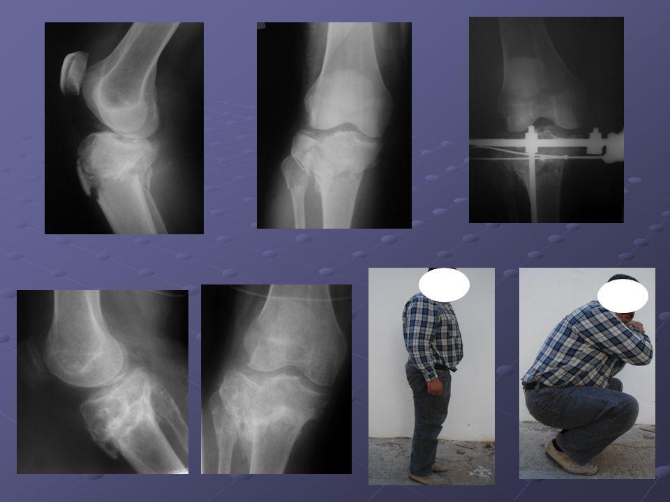 Il s'agit d'un patient de 50 ans présentant une fracture séparation enfoncement du plateau tibial externe
