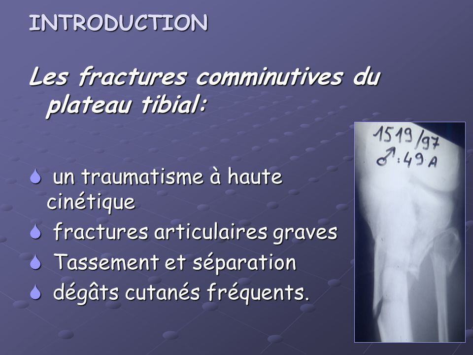 Les fractures comminutives du plateau tibial: