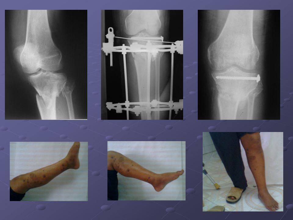 Le dernier exemple est celui d'un patrient de 35 ans qui a été victime d'un AVP occasionnant chez lui une fracture épiphyso-métaphysaire comminutive des plateaux tibiaux.
