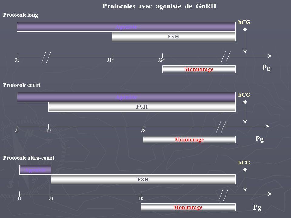 Protocoles avec agoniste de GnRH