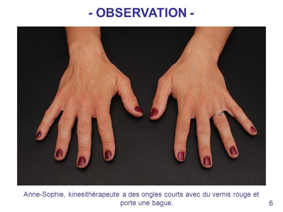 - OBSERVATION - Anne-Sophie, kinesithérapeute a des ongles courts avec du vernis rouge et porte une bague.